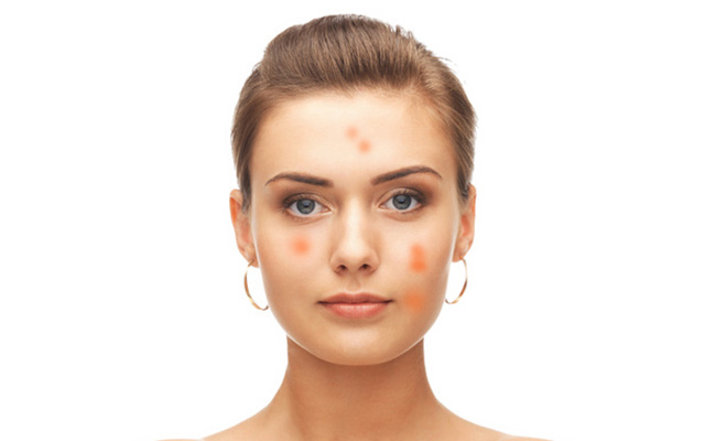How can you get rid of post viral rash?