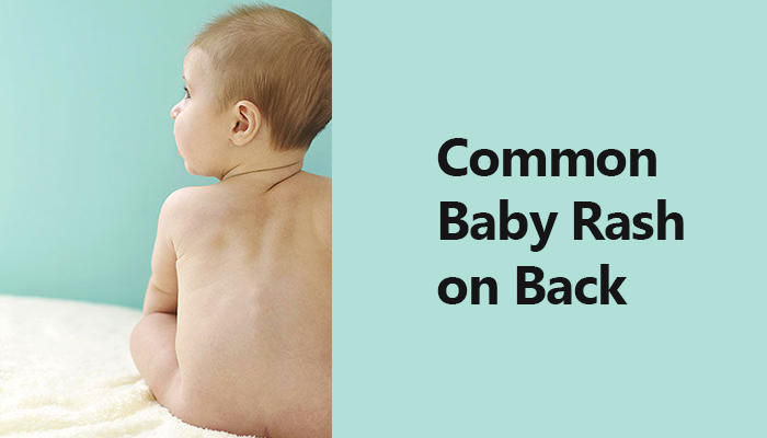 How To Relieve Baby Rash on Back?
