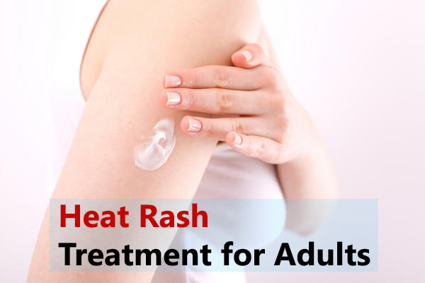 Heat Rash Treatment for Adults: Possible Treatments and Tips