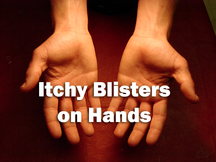 Itchy Blisters on Hands
