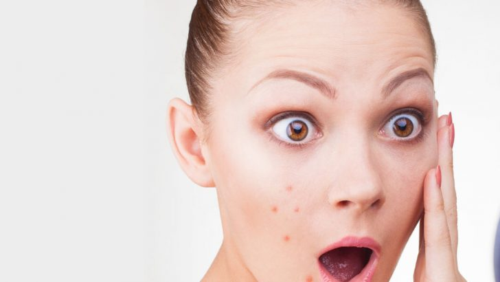 Sudden Rash on Face: Symptoms, Causes and Treatment