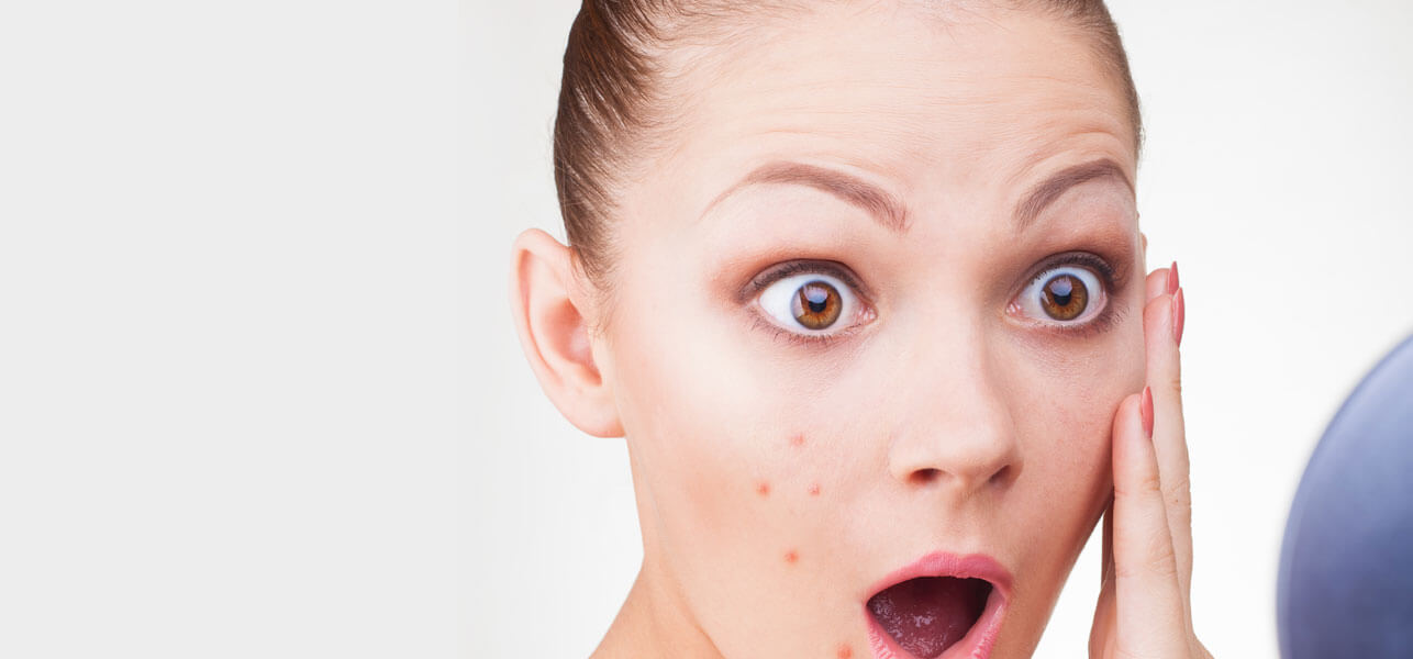 Sudden Rash on Face: Symptoms, Causes and Treatment - All Rash