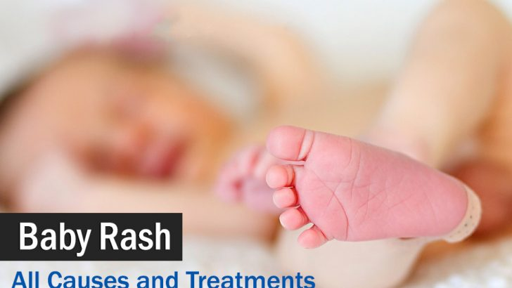 Baby Rash: baby your baby skin, All Causes and Treatments