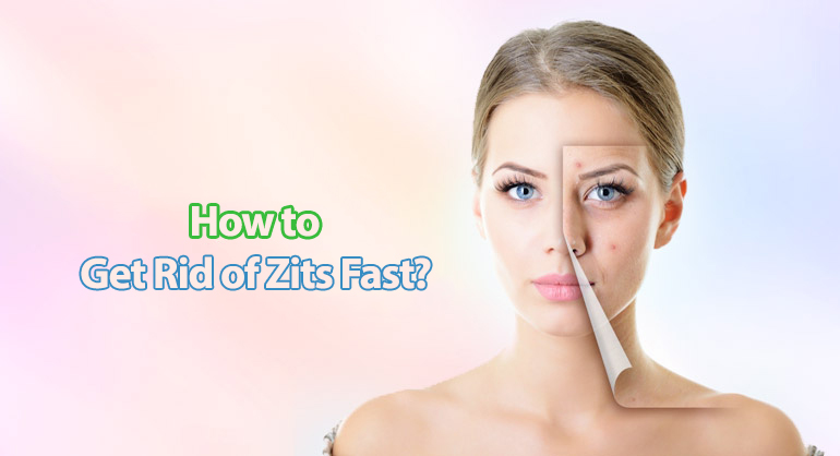 How To Get Rid Of Redness From Zits