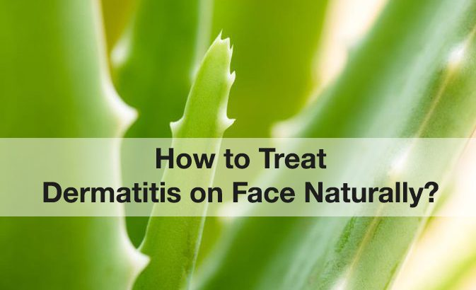 How to Treat Dermatitis on Face Naturally?