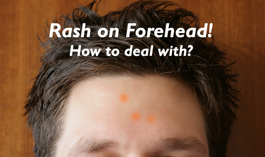 Forehead Rash: here're most important things you should know