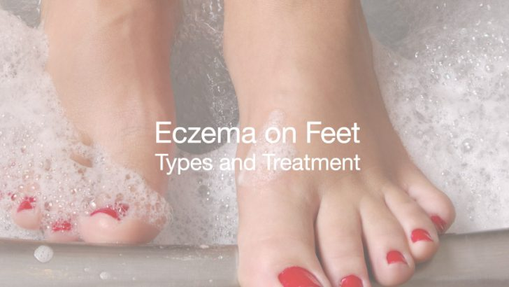 How to Get Rid of Eczema on Feet, Types and Treatment - All Rash