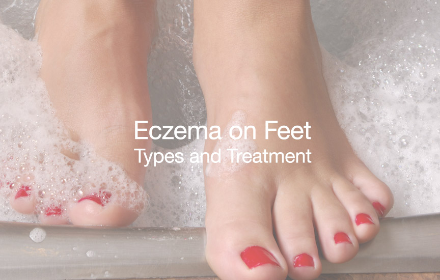 How To Get Rid Of Eczema On Feet Types And Treatment