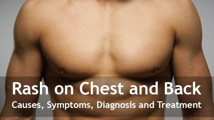 Rash on Chest and Back: Causes, Symptoms, Diagnosis and Treatment