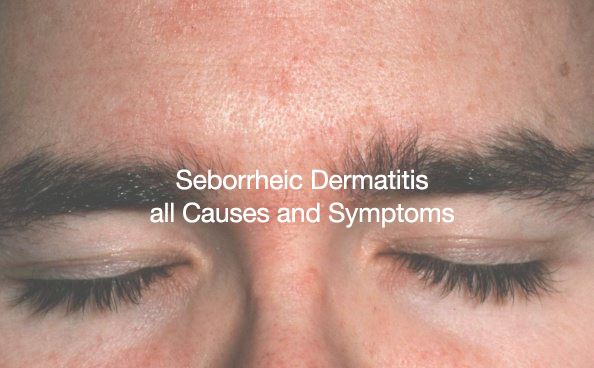 Your full guide to deal with Seborrheic Dermatitis, all