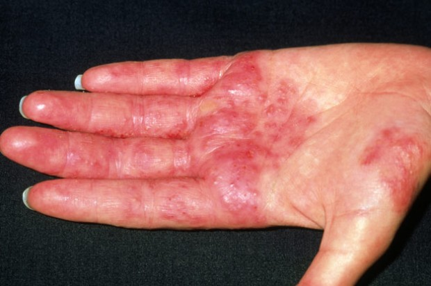 Eczema and dermatitis all causes treatments and symptoms all rash
