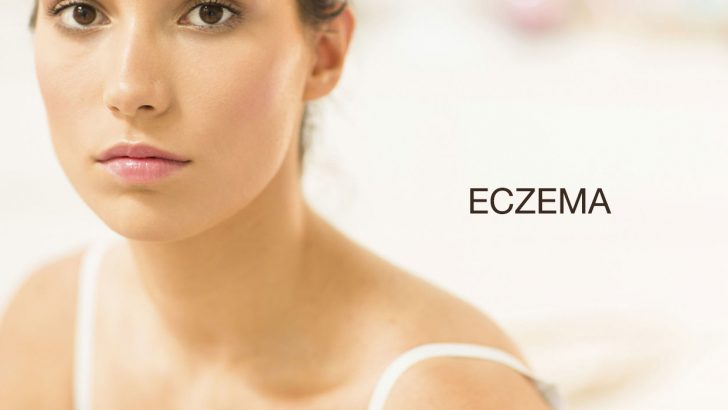 Eczema and Dermatitis all Causes,Treatments and Symptoms