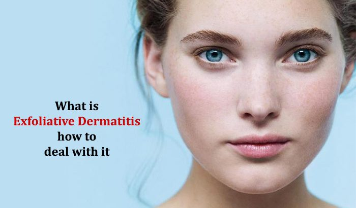 What is Exfoliative Dermatitis and how to deal with it?