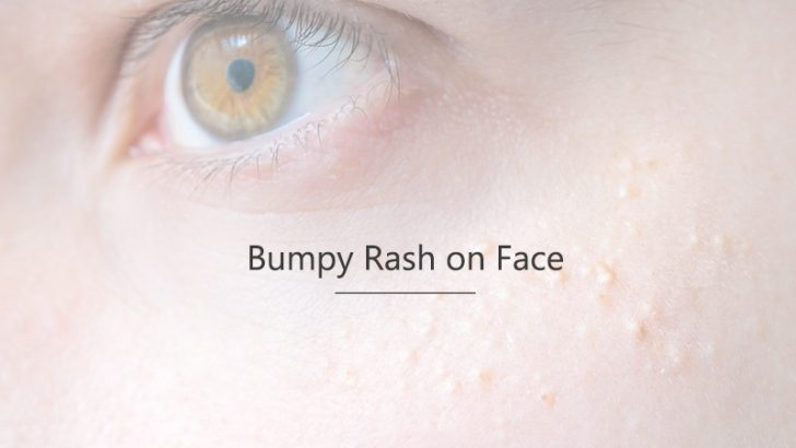 how to get rid of bumpy skin on face