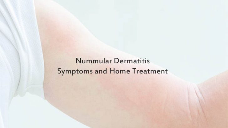 Nummular Dermatitis Symptoms and Home Treatment