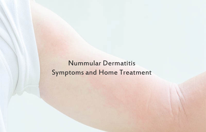 best treatment for dermatitis